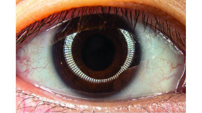 infección ocular en tejido profundo