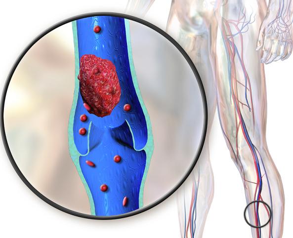 De el muslo sangre un en Cómo coágulo detectar