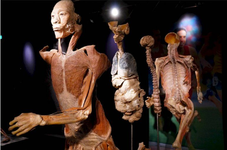 Exposición sobre anatomía en Roma cancela un espectáculo que causó ...