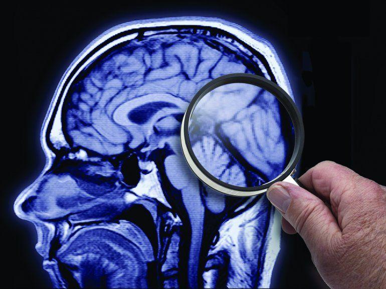 Cáncer de cerebro y presión arterial