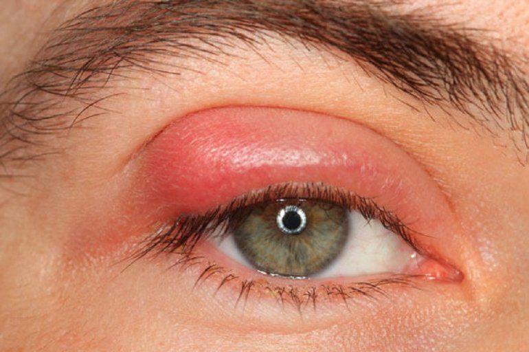 Como puedo quitar un orzuelo del ojo