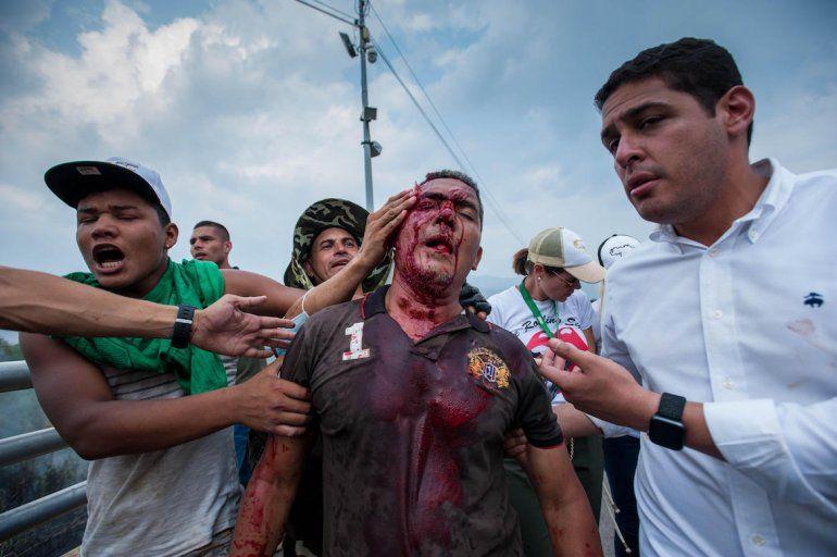 Uno de los heridos es trasladado por el diputado  venezolano y también médico José Manuel Olivares.