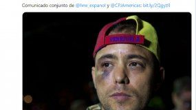 José Miguel Vivanco denunció la detención del periodista.