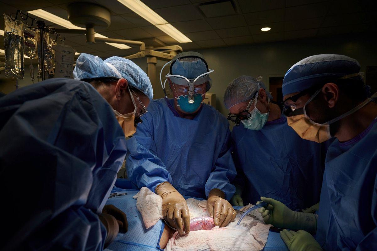 En esta fotografía de septiembre de 2021, facilitada por el centro médico Langone Health, de la Universidad de Nueva York, un equipo quirúrgico examina un riñón de cerdo unido al cuerpo de una donadora fallecida para examinar la reacción de rechazo.