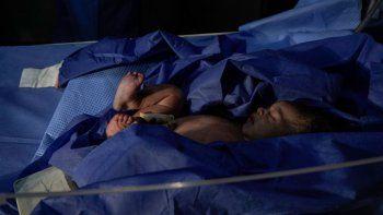 El bebé recién nacido de Briggite Pérez (19) se ve descansando en una camilla antes de ser trasladado a la guardería del Hospital Universitario de Caracas el 26 de diciembre de 2020. La mortalidad infantil en Venezuela aumentó un 30,12% en 2016, con 11.466 muertes de niños de edad avanzada. 0 a 1 año, y la mortalidad materna se disparó 65%, según las últimas cifras publicadas por el Ministerio de Salud.