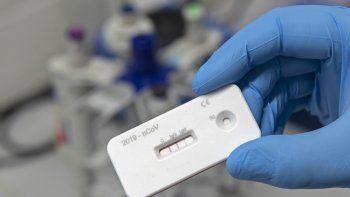 Un científico presenta una prueba de anticuerpos para el coronavirus en un laboratorio del Instituto Leibniz de Tecnologia Fotónica en Jena, Alemania, el viernes 3 de abril de 2020.